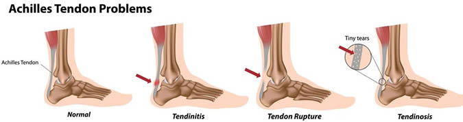 Achilles Tendonitis Cycling Injury